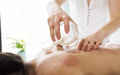 Accupuncture and Cupping